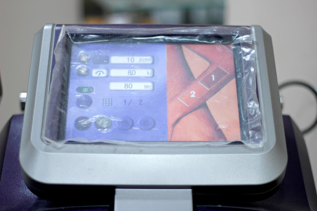 Laser Hair Removal machine at Kaya Skin Clinic